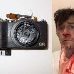 Street photographer pays with blood for a photo